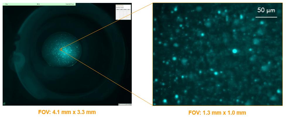 imaging-field-of-view-range